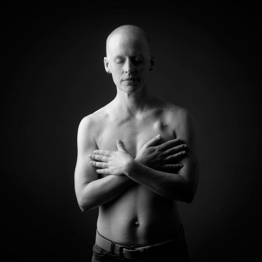 Frau, nackt, Oberkörper, ohne Brüste, Krebs, Cancer