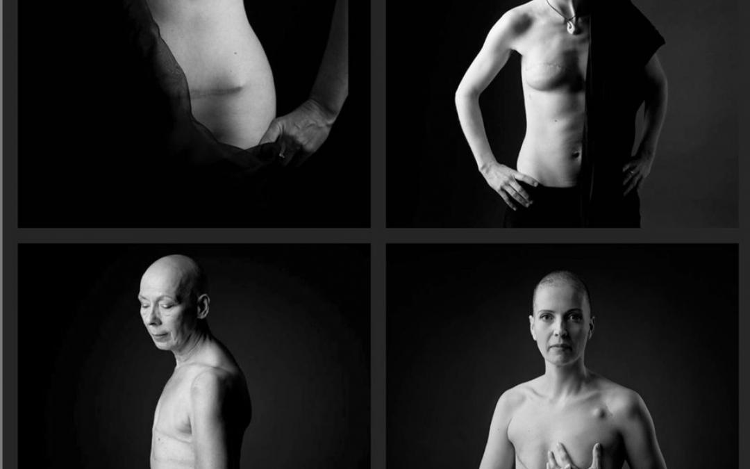Meine Narben – Portraitprojekt