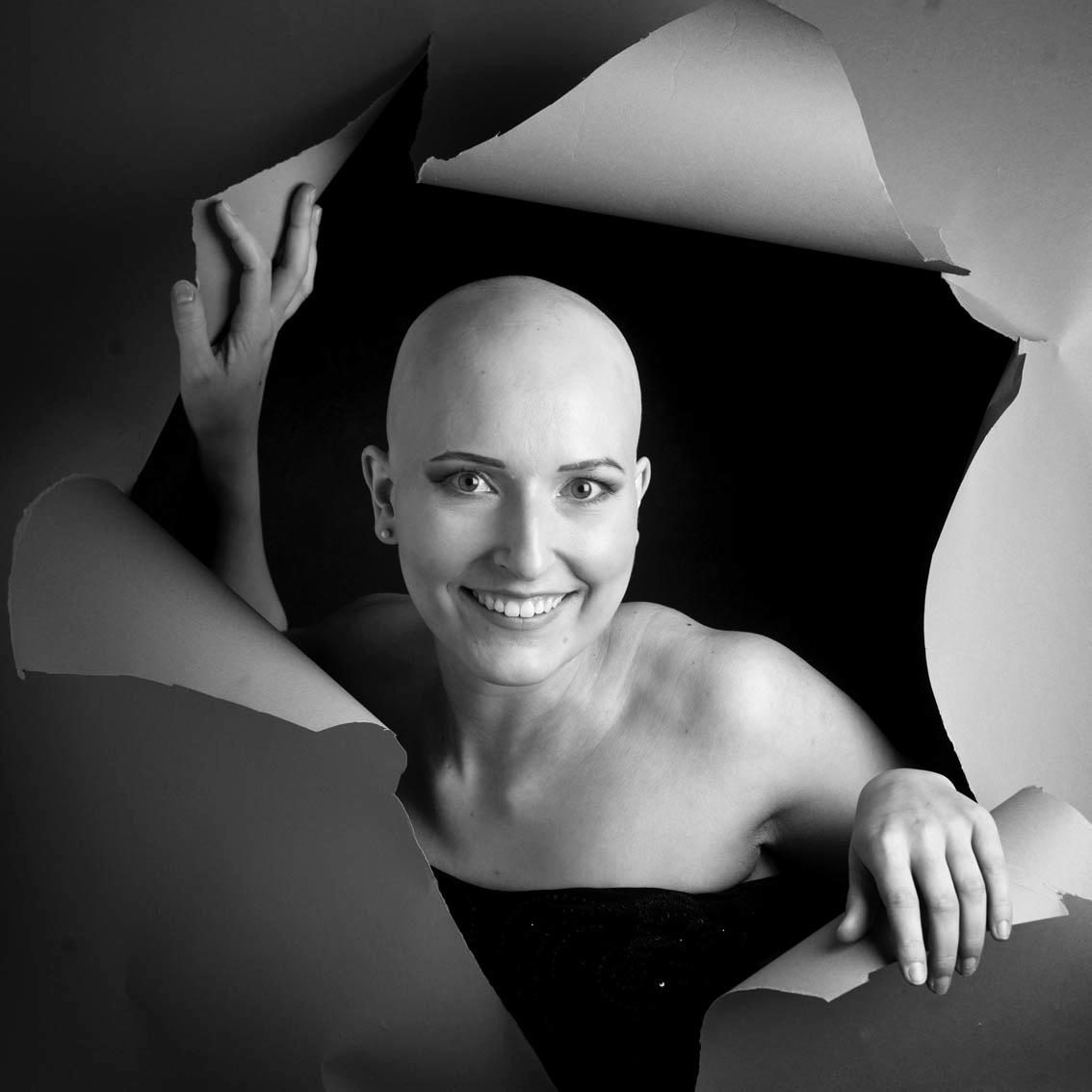 Alopecia areata, Portrait, Düsseldorf